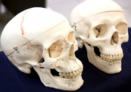 The newly donated anatomical skulls, such as the one on the left, have darker suture lines than the Biology Lab's older skulls (right) said Health Professions Club President Caleb Hill. Melissa Sue Lopez/Pioneer.